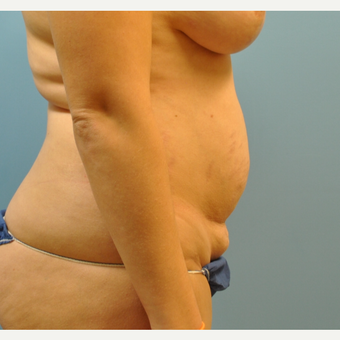33 year old woman treated with Tummy Tuck before 3583971