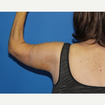 55-64 year old woman treated with Arm Lift after 2114613