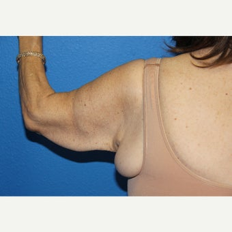 55-64 year old woman treated with Arm Lift before 2114613