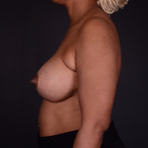 45-54 year old woman treated with Mentor Breast Implants after 2929753