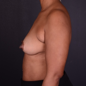 45-54 year old woman treated with Mentor Breast Implants before 2929753