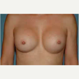 Breast Augmentation after 3058283