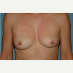 Breast Augmentation before 3058283