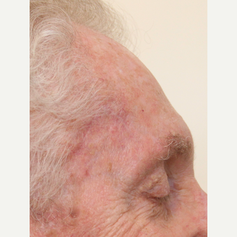 Complex Mohs Repair of the Forehead