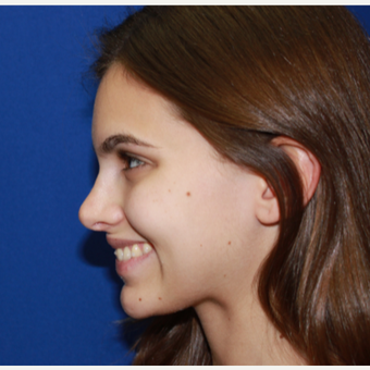 18-24 year old woman treated with Rhinoplasty after 3137006