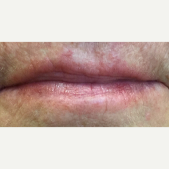 55-64 year old woman treated with Juvederm and Restylane before 3092368