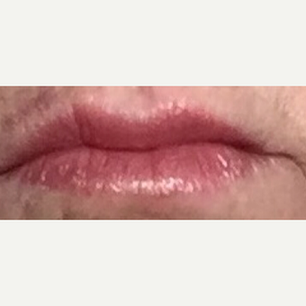 55-64 year old woman treated with Juvederm and Restylane after 3092368