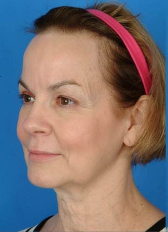 57 year old female who wanted a more defined jawline and tighter neck. before 1173970
