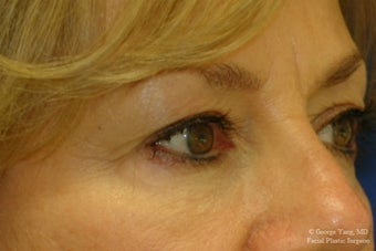 55 year-old woman underwent Restylane injections to blend away eyebags and give a virtual cheeklift. after 1481460