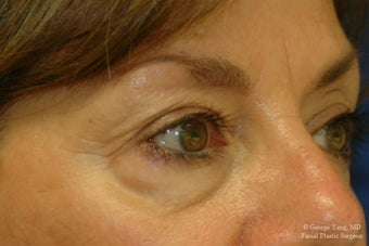 55 year-old woman underwent Restylane injections to blend away eyebags and give a virtual cheeklift. before 1481460
