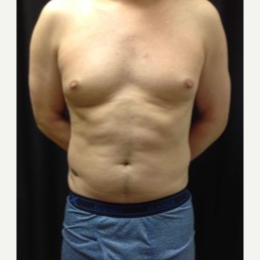 35-44 year old man treated with CoolSculpting to the Abdominal Fat. before 3423838