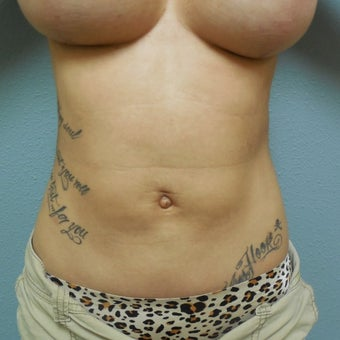 35-44 year old woman treated with Liposuction after 1574810