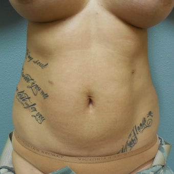 35-44 year old woman treated with Liposuction before 1574810