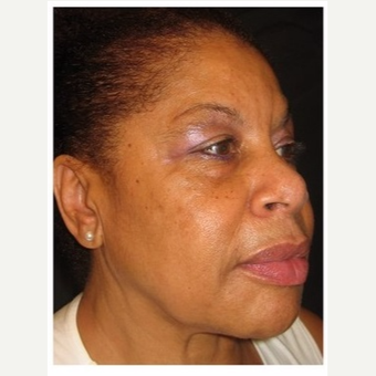 55-64 year old woman treated with Non Surgical Face Lift after 3181102