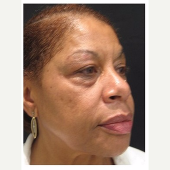 55-64 year old woman treated with Non Surgical Face Lift before 3181102