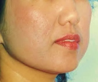 Acne Scars  Dermabrasion minimal, only after 1281256