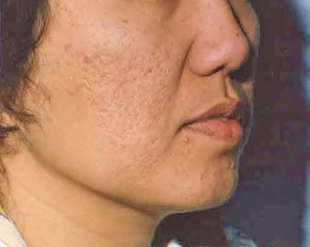 Acne Scars  Dermabrasion minimal, only before 1281256