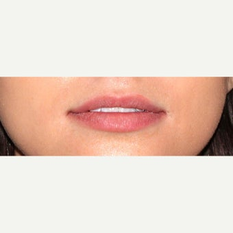 18-24 year old woman treated with Juvederm before 1602473