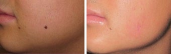Mole Removal photos before 951871