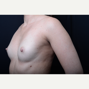 35-44 year old woman treated with Breast Augmentation before 3384060