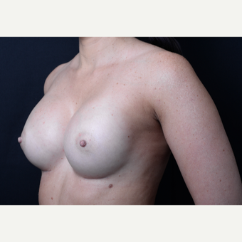 35-44 year old woman treated with Breast Augmentation after 3384060