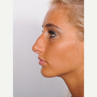 Rhinoplasty before 2595758