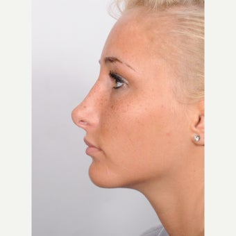 Rhinoplasty after 2595758