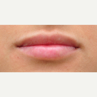 25-34 year old woman treated with Lip Augmentation after 3564975