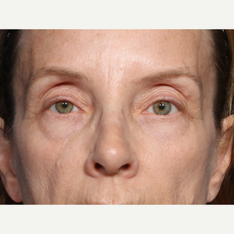 55-64 year old woman treated with Eyelid Surgery (view 1 of 2) before 3226180