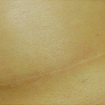 Breast augmentation scar before and after treatment with embrace® after 2864548