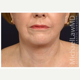 65-74 year old woman treated with Cheek Augmentation after 2671546