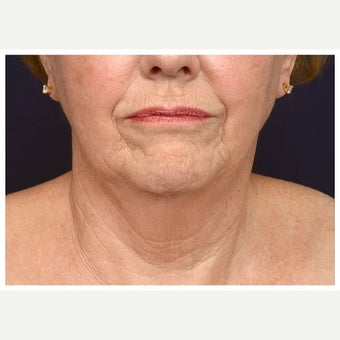 65-74 year old woman treated with Cheek Augmentation before 2671546