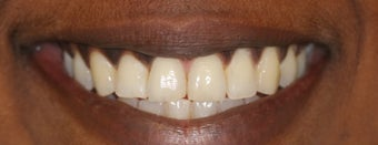 25-34 year old woman treated with Invisalign after 2990754