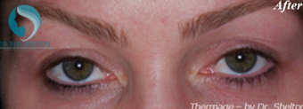 25-34 year old woman treated with Thermage to help lift upper eyelid sagging