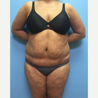 47 year old woman treated with Liposuction to the full abdomen, waist, and flanks. before 2399977