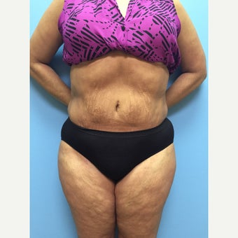 47 year old woman treated with Liposuction to the full abdomen, waist, and flanks. after 2399977