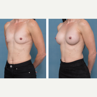 45-54 year old woman treated with Breast Augmentation before 3058179