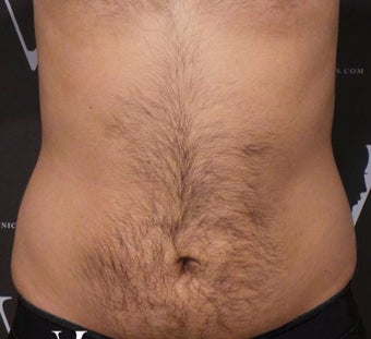CoolSculpting treatment on the flanks and abdomen before 3127403
