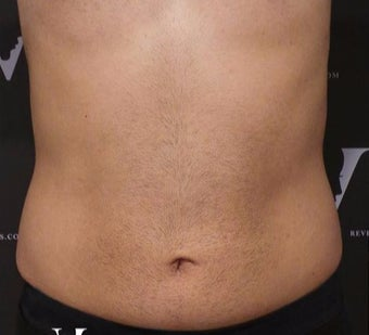 CoolSculpting treatment on the flanks and abdomen after 3127403