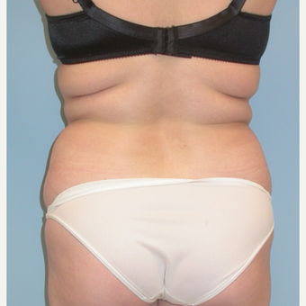 35-44 year old woman treated with Liposuction before 3053571