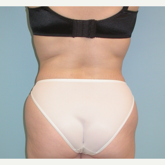 35-44 year old woman treated with Liposuction after 3053571