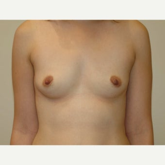 25-34 year old woman with Breast Augmentation - 450cc Gel Implants before 1688355