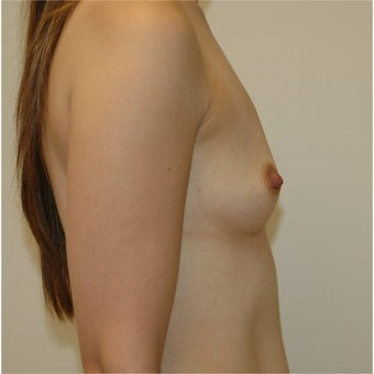 25-34 year old woman with Breast Augmentation - 450cc Gel Implants 1688355