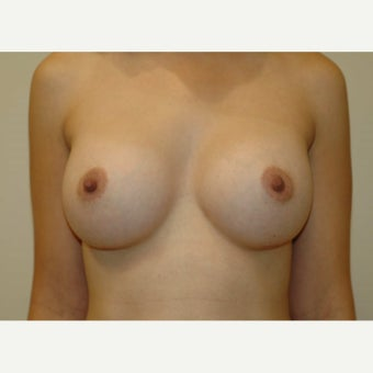 25-34 year old woman with Breast Augmentation - 450cc Gel Implants after 1688355