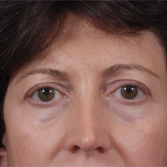 55-64 year old woman treated with Juvederm before 1789679