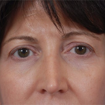 55-64 year old woman treated with Juvederm after 1789679