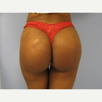 18-24 year old woman treated with Butt Implants 1865279