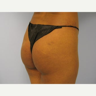 18-24 year old woman treated with Butt Implants before 1865279