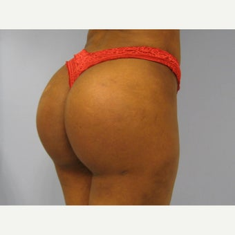 18-24 year old woman treated with Butt Implants after 1865279