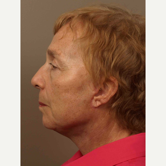 55-64 year old woman treated with Facelift after 3031623